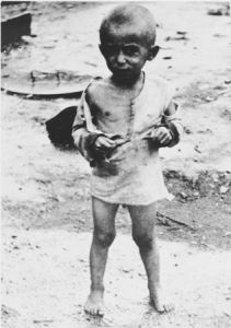 emaciated-20child-20at-20the-20jasenovac-20camp-jpg